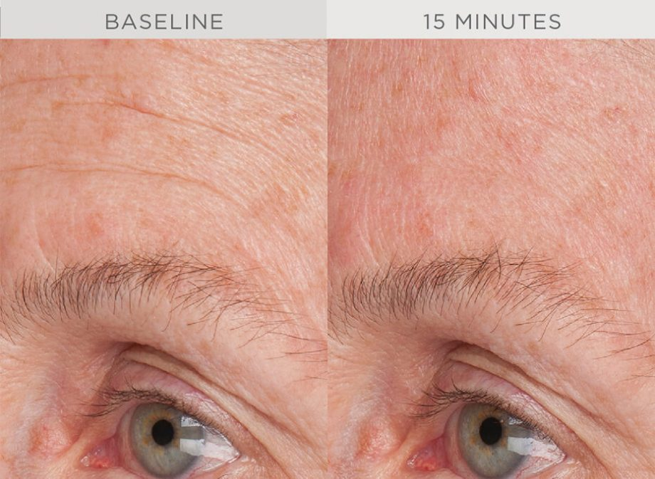 wrinkle-reduction-1